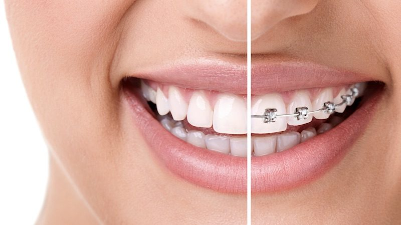 braces-orthodontist